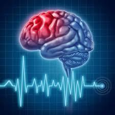 مردم باید با علائم سکته مغزی آشنا شوند