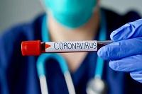 معاون توسعه و مدیریت منابع دانشگاه؛ نگران انتقال ویروس کرونا به مسافران نوروزی هستیم